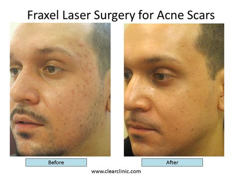 best acne scar treatment the five things you should about fraxel acne scar