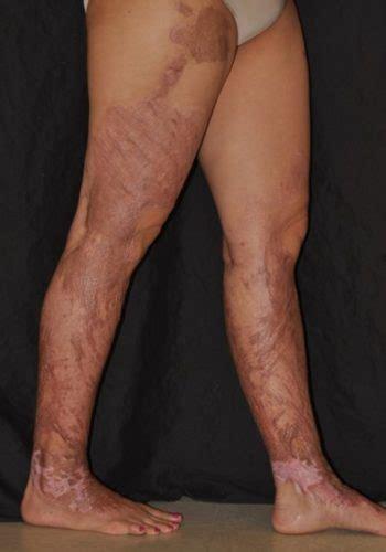 burn scars miami dermatology  laser institute
