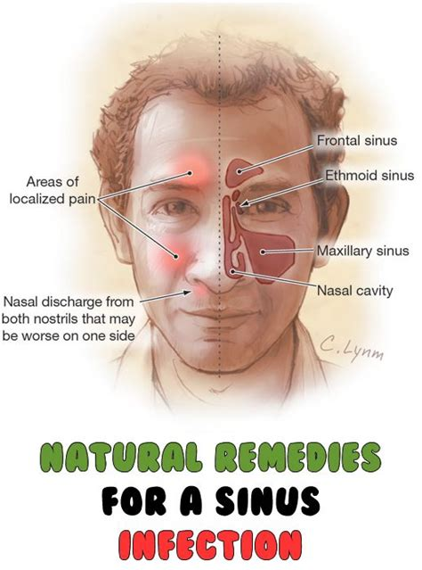 Sinus Cure 17 best images about health on sinus infection a well and ear reflexology
