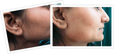 stop womens chin hair growth hirsutism is known as growth of coarse dark hair at the