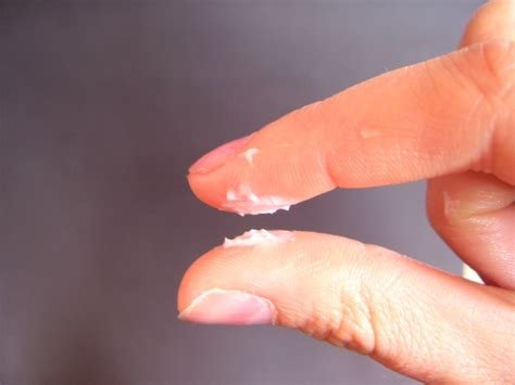 White Clumpy Cottage Cheese Like Discharge by Thick White Mucus Discharge