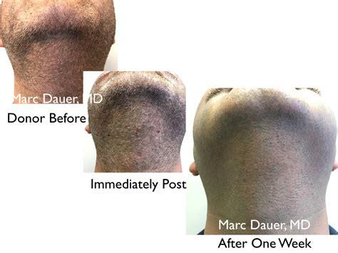 transplant hair second round draft mustache fue hair transplant hair transplant los angeles