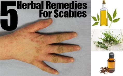 How To Clean Your House Of Scabies by How To Kill Scabies Home Treatment For Scabies Mites 2015
