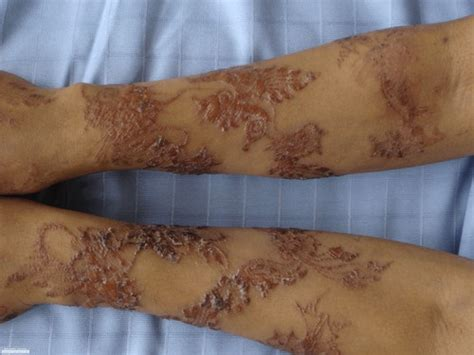 henna tattoos on black skin henna scarring caused by ppd in black henna ink it s