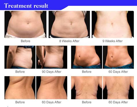 Lipo Cavitation With Cavitation cavitation lipo laser slimming machine fomis