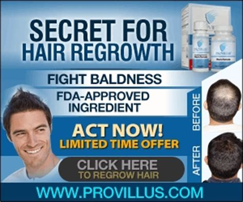 best hair regrowth products for men provillus for men