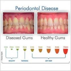 gum pockets home treatment gum disease recession periodontitis pockets bacterial