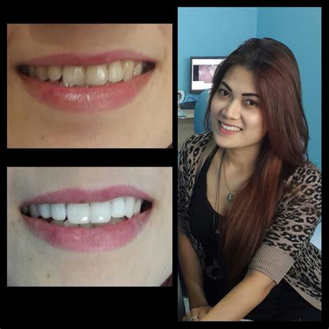 Biaya Pemutihan Gigi Veneer pasang veneer gigi terbaik di jakarta audy dental jakarta dental clinic klinik dokter gigi