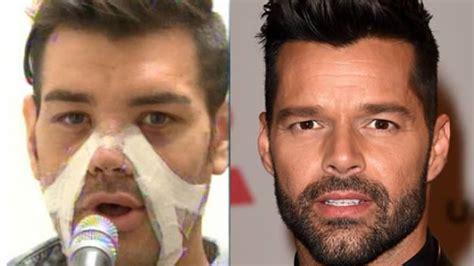 Ricky Martin Shows Footage Of Himself by Another 10 Of The Most Surgeries To Look Like
