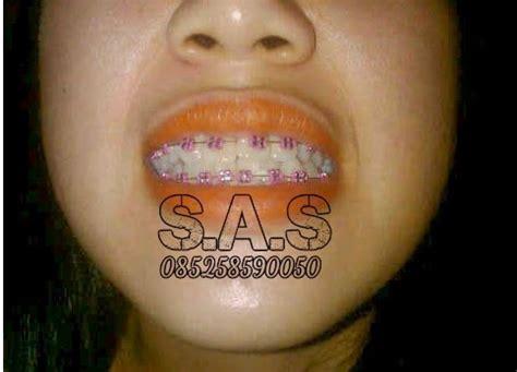 Biaya Pemutihan Gigi Di Jogja s a s ahli gigi kota pati jateng kota jember jatim
