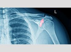 Shoulder Fractures: Causes, Types, Symptoms and Treatments ... Fractured Wrist Treatment