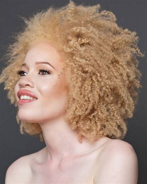 albino haircuts 1000 images about beautiful black albinos on pinterest