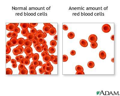 alimentazione anemia informazioni anemia i sintomi le tipologie e il ruolo