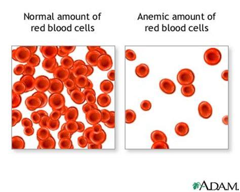 alimenti anemia informazioni anemia i sintomi le tipologie e il ruolo