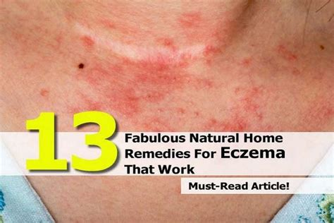 13 fabulous home remedies for eczema that work