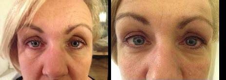tattoo eyeliner bristol semi permanent makeup bristol gallery of our work