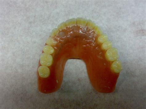 protesi dentarie mobili senza palato laboratorio odontotecnico rovinetti grandi bologna