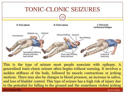 can a die from a seizure brain post skier s avalanche burial injury leads to sudoku induced seizures snowbrains