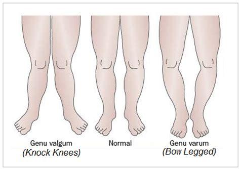 boat legged definition knocked knees sutherland podiatry sutherland podiatry