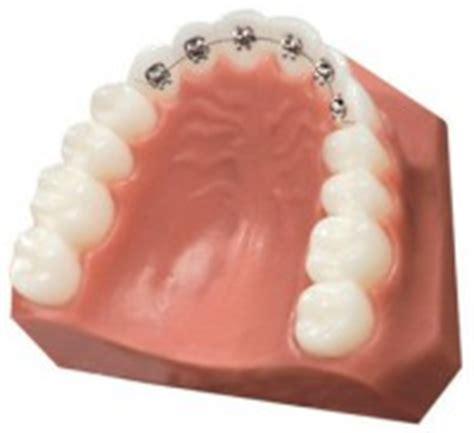 apparecchio interno costo apparecchio ortodonzia invisibile linguale invisalign