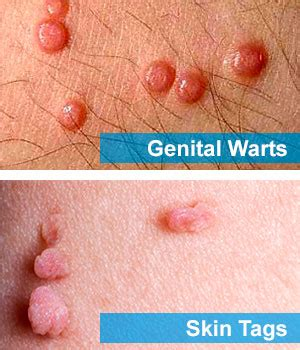 skin tag or ingrown hair on underwear line some information about skin tags vs warts