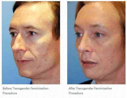 facial feminization procedures transgender plastic surgery this is a before after a facial feminization procedure