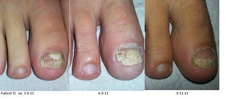 Most Resilient Pedicure by Nail Fungus Treatment Nail Infection Treatment Nail