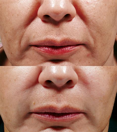 bellafill for results of acne scars bellafill 174 dr erickson dermatology