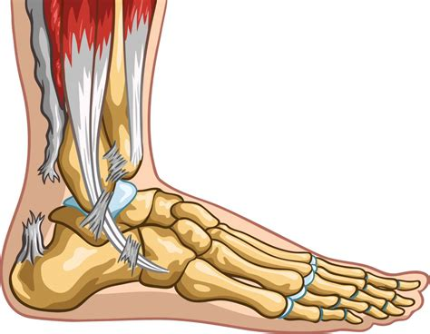 Georgina Lower Heel what are achilles tendonitis and how to fix them