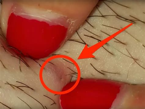 tweezing vs shaving pubic area for women video shows woman removing ingrown hair from leg insider