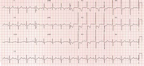 strain pattern ecg definition right ventricular strain life in the fast lane ecg library