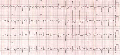 lvh pattern right ventricular hypertrophy