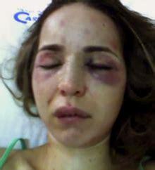 imagenes de mujeres victimas de violencia de genero boas pr 225 ticas farmac 234 uticas viol 234 ncia dom 233 stica