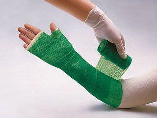 for colored cast best 25 broken arm cast ideas on arm cast