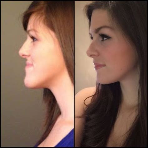 orthognathic surgery age 50 and over 8 best orthognathic jaw surgery images on pinterest