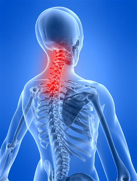 neck pain after c section neck pain birmingham al chiropractor for jefferson county