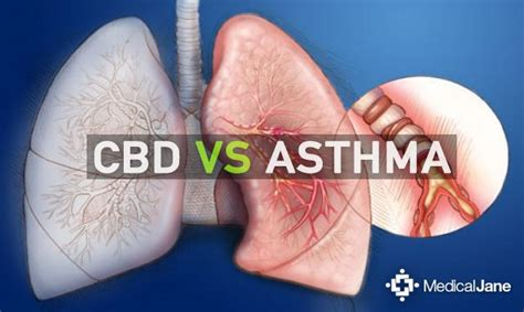 Fish Marijuana Detox by Cbd Tinctures For Relief What Are The Benefits Of