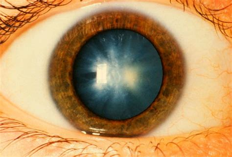 cataract treatment breakthrough discovery eye drops designed to treat cataract