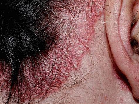 psoriasis cuero cabelludo psoriasis en el cuero cabelludo y perdida de cabello