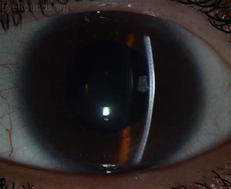 slit l eye corneal clouding in hurler s