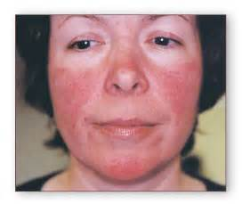 laser skin solutions rosacea treatment