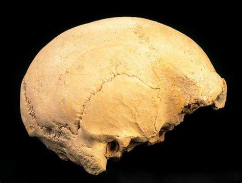 imagenes de huesos temporales definici 243 n de hueso temporal que es conceptos y