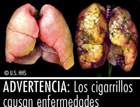 imagenes fuertes sobre el tabaquismo costa rica reforzar 225 acciones contra el tabaquismo