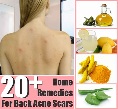 20 top home remedies for back acne scars diy home things