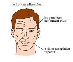 paralysie faciale orl nc