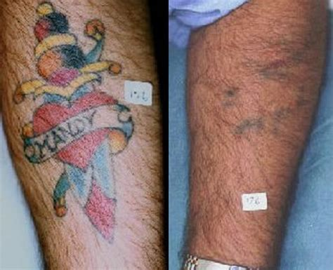 affordable laser tattoo removal cheap removal cost