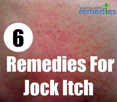 6 effective home remedies for itch home remedies