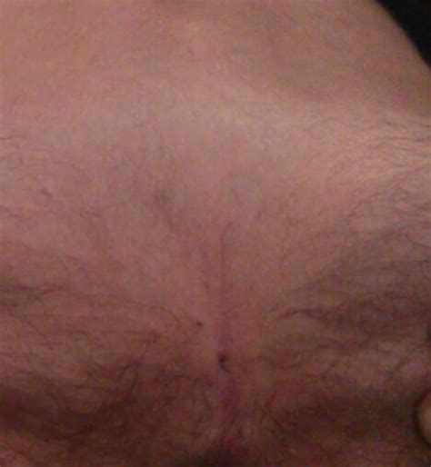 pilonidal cyst is this a pilo pilonidal support forums