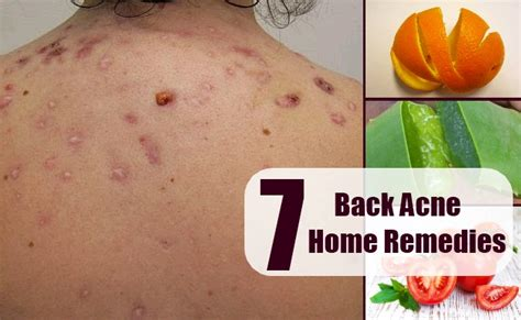 different back acne home remedies treatments