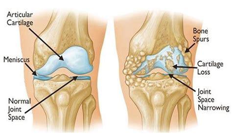 dolore ginocchio parte interna 7 remedios caseros para el dolor de rodilla